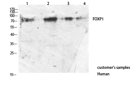 Fig.2. Western Blot analysis of customer's using FOXP1 Antibody Polyclonal Antibody. Antibody was diluted at 1:1000. Secondary antibody (catalog#: A21020) was diluted at 1:20000.