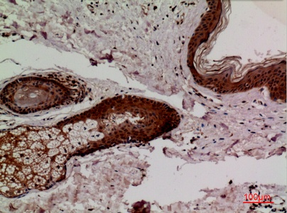 Fig.2. Immunohistochemical analysis of paraffin-embedded human-skin, antibody was diluted at 1:100.