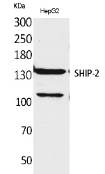 Fig.1. Western Blot analysis of HepG2 cells using SHIP-2 Polyclonal Antibody. Secondary antibody (catalog#: A21020) was diluted at 1:20000.