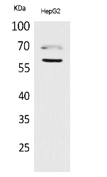 Fig.1. Western Blot analysis of HepG2 cells using HEXA Polyclonal Antibody. Antibody was diluted at 1:1000. Secondary antibody (catalog#: A21020) was diluted at 1:20000.