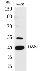 Fig. Western Blot analysis of HepG2 cells using LASP-1 Polyclonal Antibody. Antibody was diluted at 1:500. Secondary antibody (catalog#: A21020) was diluted at 1:20000.