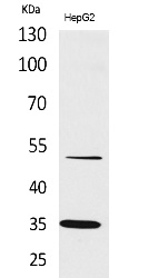 Fig. Western Blot analysis of HepG2 cells using TFPI Polyclonal Antibody. Secondary antibody (catalog#: A21020) was diluted at 1:20000.