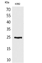 Fig.1. Western Blot analysis of K562 cells using CD7 Polyclonal Antibody. Secondary antibody (catalog#: A21020) was diluted at 1:20000.