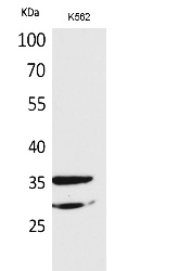 Fig. Western Blot analysis of K562 cells using IL-2Rα Polyclonal Antibody. Secondary antibody (catalog#: A21020) was diluted at 1:20000.