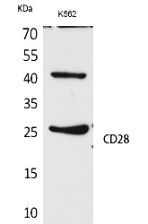 Fig. Western Blot analysis of K562 cells using CD28 Polyclonal Antibody. Secondary antibody (catalog#: A21020) was diluted at 1:20000.