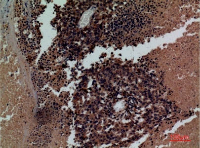 Fig.3. Immunohistochemical analysis of paraffin-embedded human-lung-cancer, antibody was diluted at 1:100.