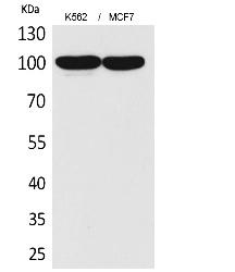 Fig.1. Western Blot analysis of K562,  MCF7 cells using CD203c Polyclonal Antibody. Antibody was diluted at 1:2000. Secondary antibody (catalog#: A21020) was diluted at 1:20000.