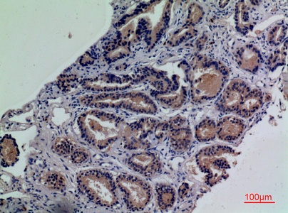 Fig.4. Immunohistochemical analysis of paraffin-embedded human-prostate-cancer, antibody was diluted at 1:100.