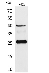 Fig. Western Blot analysis of K562 cells using CD161 Polyclonal Antibody. Secondary antibody (catalog#: A21020) was diluted at 1:20000.