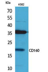 Fig.1. Western Blot analysis of K562 cells using CD160 Polyclonal Antibody. Secondary antibody (catalog#: A21020) was diluted at 1:20000.