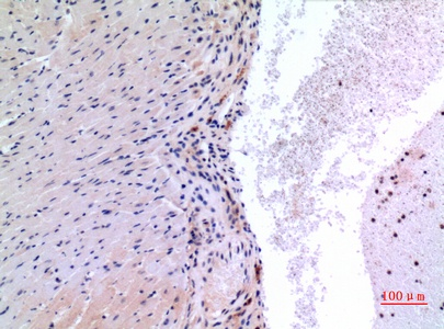 Fig.2. Immunohistochemical analysis of paraffin-embedded Mouse-heart, antibody was diluted at 1:100.