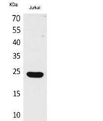 Fig. Western Blot analysis of Jurkat cells using IFN-ε Polyclonal Antibody. Secondary antibody (catalog#: A21020) was diluted at 1:20000.
