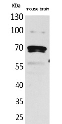 Fig.1. Western Blot analysis of Mouse brain cells using Amphiphysin II Polyclonal Antibody. Secondary antibody (catalog#: A21020) was diluted at 1:20000.