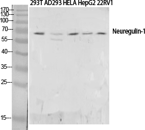 Fig. Western Blot analysis of HepG2,  Mouse liver cells using Neuregulin-1 Polyclonal Antibody. Antibody was diluted at 1:1000. Secondary antibody (catalog#: A21020) was diluted at 1:20000.