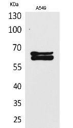 Fig. Western Blot analysis of A549 cells using NUMB Polyclonal Antibody. Secondary antibody (catalog#: A21020) was diluted at 1:20000.