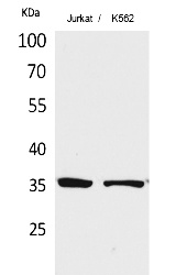 Fig. Western Blot analysis of Jurkat, K562 cells using Ref-1 Polyclonal Antibody. Secondary antibody (catalog#: A21020) was diluted at 1:20000.