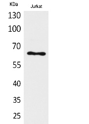 Fig.1. Western Blot analysis of Jurkat cells using Keratin-pan Polyclonal Antibody. Secondary antibody (catalog#: A21020) was diluted at 1:20000.