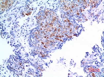 Fig.3. Immunohistochemical analysis of paraffin-embedded human-mammary-cancer, antibody was diluted at 1:100.