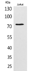 Fig. Western Blot analysis of Jurkat cells using c-Myb Polyclonal Antibody. Secondary antibody (catalog#: A21020) was diluted at 1:20000.