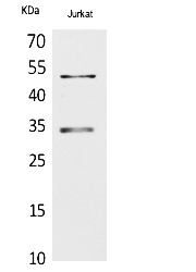 Fig. Western Blot analysis of Jurkat cells using MyoD Polyclonal Antibody. Secondary antibody (catalog#: A21020) was diluted at 1:20000.