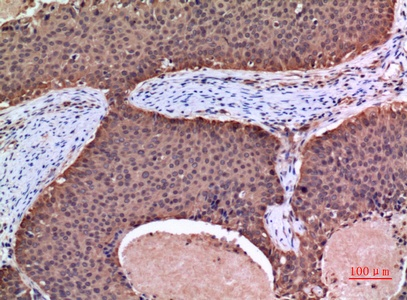 Fig.2. Immunohistochemical analysis of paraffin-embedded human-mammary-cancer, antibody was diluted at 1:100.