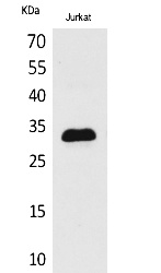 Fig.1. Western Blot analysis of Jurkat cells using p57 Polyclonal Antibody. Secondary antibody (catalog#: A21020) was diluted at 1:20000.