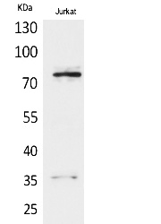 Fig.1. Western Blot analysis of Jurkat cells using p73 Polyclonal Antibody. Secondary antibody (catalog#: A21020) was diluted at 1:20000.