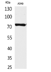 Fig. Western Blot analysis of A549 cells using p73 Polyclonal Antibody. Secondary antibody (catalog#: A21020) was diluted at 1:20000.