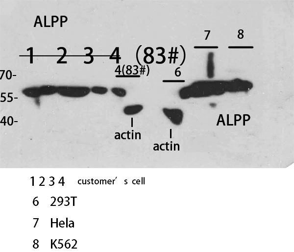 Fig.2. Western Blot analysis of customer's sample using ALPP/ALPPL2 Polyclonal Antibody. Antibody was diluted at 1:2000. Secondary antibody (catalog#: A21020) was diluted at 1:20000.