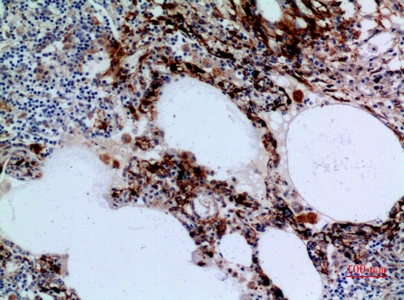 Fig.3. Immunohistochemical analysis of paraffin-embedded human-lung, antibody was diluted at 1:100.