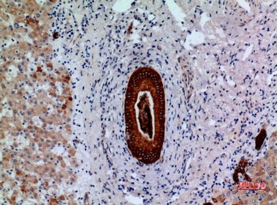 Fig.5. Immunohistochemical analysis of paraffin-embedded human-liver, antibody was diluted at 1:100.