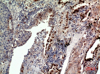 Fig.4. Immunohistochemical analysis of paraffin-embedded human-lung, antibody was diluted at 1:100.