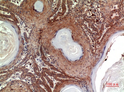 Fig.4. Immunohistochemical analysis of paraffin-embedded human-skin, antibody was diluted at 1:100.