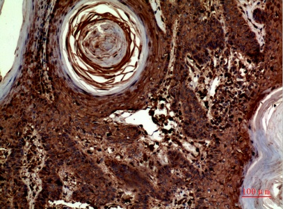 Fig.3. Immunohistochemical analysis of paraffin-embedded human-skin, antibody was diluted at 1:100.