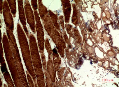 Fig.2. Immunohistochemical analysis of paraffin-embedded human-muscle, antibody was diluted at 1:100.
