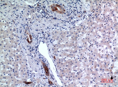 Fig.2. Immunohistochemical analysis of paraffin-embedded human-liver, antibody was diluted at 1:100.