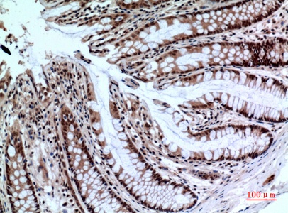 Fig.3. Immunohistochemical analysis of paraffin-embedded human-colon, antibody was diluted at 1:100.