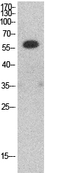 Fig.1. Western Blot analysis of HepG2 cells using HDAC1 Polyclonal Antibody. Secondary antibody (catalog#: A21020) was diluted at 1:20000.