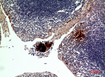 Fig.3. Immunohistochemical analysis of paraffin-embedded human-tonsilla, antibody was diluted at 1:100.