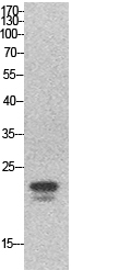 Fig.1. Western Blot analysis of hela cells using SRY Polyclonal Antibody. Secondary antibody (catalog#: A21020) was diluted at 1:20000.