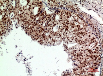 Fig.2. Immunohistochemical analysis of paraffin-embedded human-Ovarian-cancer, antibody was diluted at 1:100.