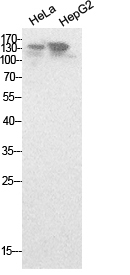 Fig.1. Western Blot analysis of hela, HepG2 cells using NCoA-3 Polyclonal Antibody. Secondary antibody (catalog#: A21020) was diluted at 1:20000.
