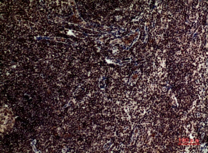 Fig.2. Immunohistochemical analysis of paraffin-embedded human-tonsilla, antibody was diluted at 1:100.