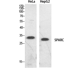 Fig.1. Western Blot analysis of hela, HepG2 cells using SPARC Polyclonal Antibody. Secondary antibody (catalog#: A21020) was diluted at 1:20000.