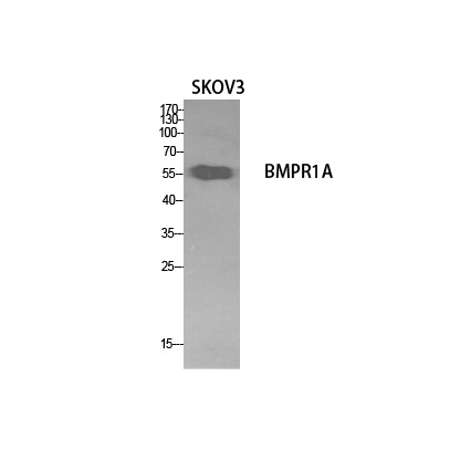 Fig. Western Blot analysis of SKOV3 cells using CD292 Polyclonal Antibody. Secondary antibody (catalog#: A21020) was diluted at 1:20000.