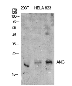 Fig.1. Western Blot analysis of 293T, hela, 823 cells using ANG I Polyclonal Antibody. Antibody was diluted at 1:500. Secondary antibody (catalog#: A21020) was diluted at 1:20000.