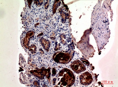 Fig.2. Immunohistochemical analysis of paraffin-embedded human-prostate-cancer, antibody was diluted at 1:100.