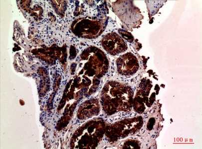 Fig.3. Immunohistochemical analysis of paraffin-embedded human-prostate-cancer, antibody was diluted at 1:100.