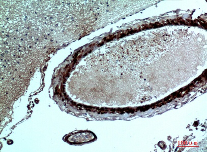 Fig.3. Immunohistochemical analysis of paraffin-embedded human-brain, antibody was diluted at 1:100.