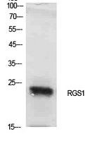 Fig. Western Blot analysis of NIH-3T3 cells using RGS1 Polyclonal Antibody. Antibody was diluted at 1:1000. Secondary antibody (catalog#: A21020) was diluted at 1:20000.